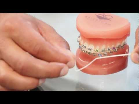 Braces: Brushing Braces, Flossing How To - Aura Orthodontics