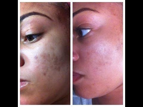 Fading Dark Spots & Preventing Acne