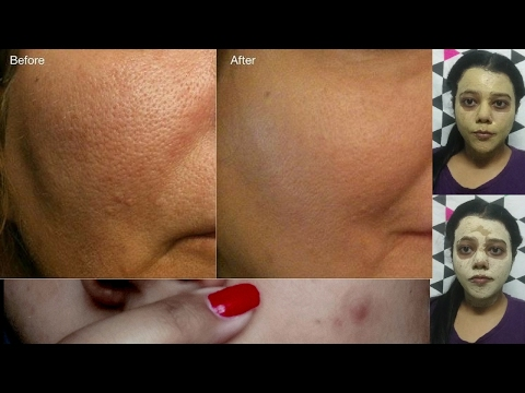 How to get Rid of Open Pores or Large Pores or Clogged Pores