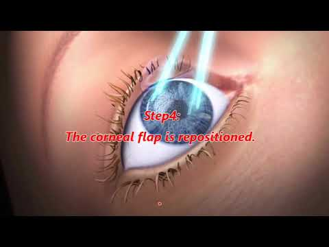 How to get rid of glasses and contacts with Laser Surgery.