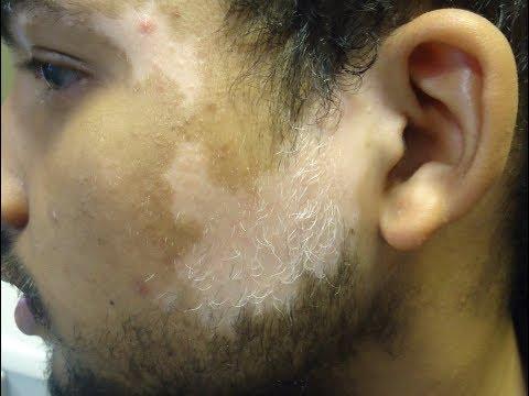 How to Cure White Spot on Skin - Vitiligo Treatment Naturally