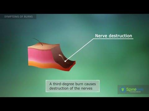 Burns. Symptoms