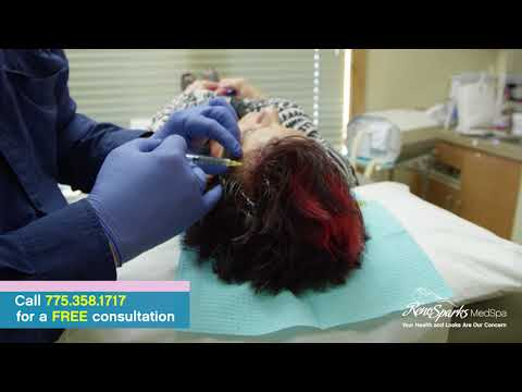 PRP (Platelet Rich Plasma) Scalp Injections for Female Hair Loss (Alopecia) - Reno Sparks MedSpa