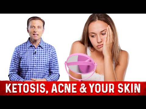 Ketosis, Acne & Your Skin
