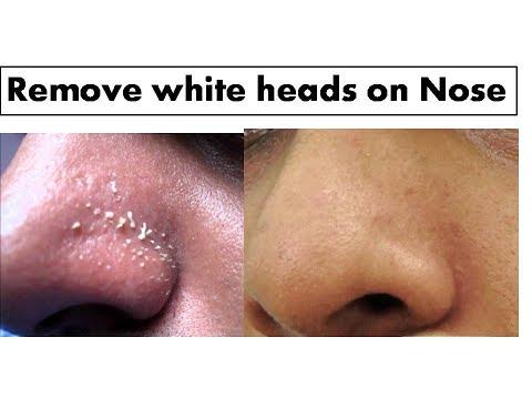 Turmeric to  remove White heads on Nose| Starnaturalbeauties