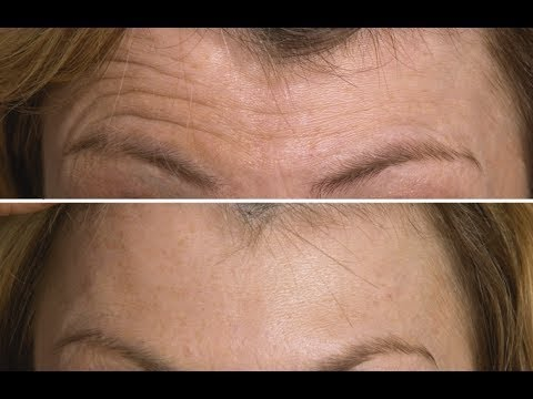 Face Exercise to Lift & Tighten Your Forehead | FACEROBICS®
