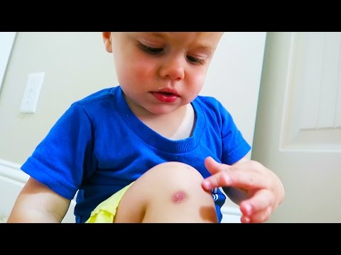FIRST SPIDER BITE/ HE IS ALL BETTER!
