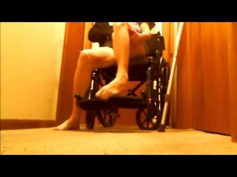 Broken Arm Two Lame Legs