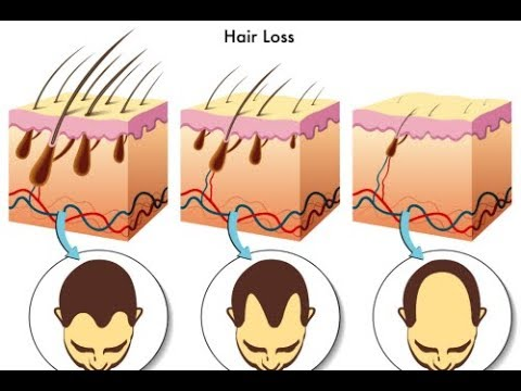 This Will Happen to Your Thinning Hair & Bald Spots When You Do These – Thin Hair Hacks