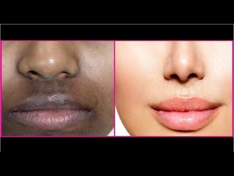 Remove Dark Spots, Black Patches Around Mouth  | Get Rid of Hyper-pigmentation & dark upper lips