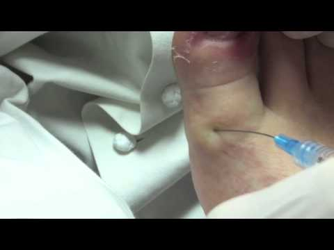 Ingrown toenail removal podiatrist