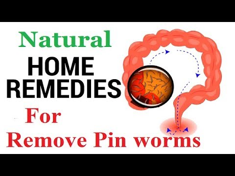 ◾How to Remove Pinworms Naturally - Home Remedies to Eliminate Pinworms,,