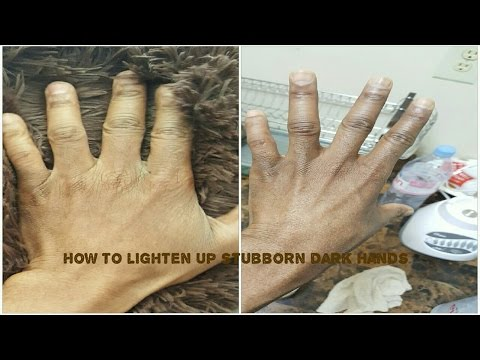 How to: Whiten up Dark Fingers and Knuckles Correctly!