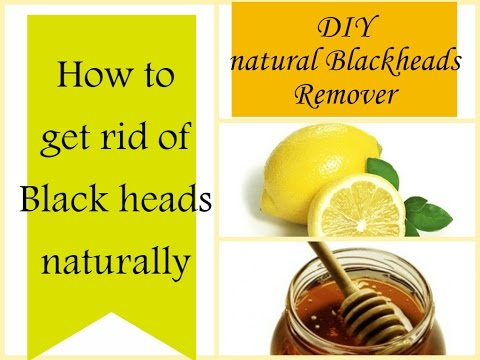 How to get rid of blackheads naturally I DIY instant blackhead remover I Home remedies