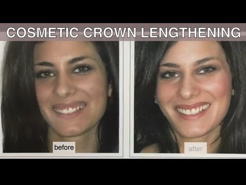 Fix Small Teeth with Crown Lengthening [GUMMY SMILE]