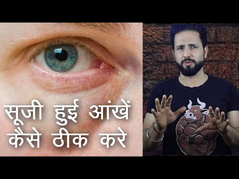 Causes of Puffy Eyes | How to cure it | सूजी हुई आंखें कैसे ठीक करे ?