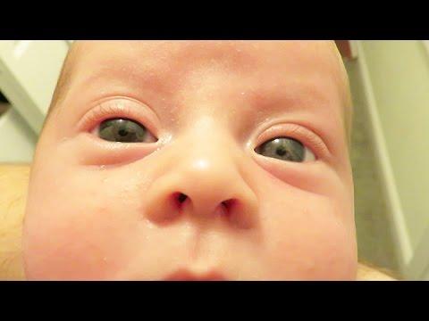 Our Son Has Heterochromia Iridum