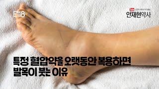 특정 혈압약을 오랫동안 복용하면 발목이 붓는 이유 E118
