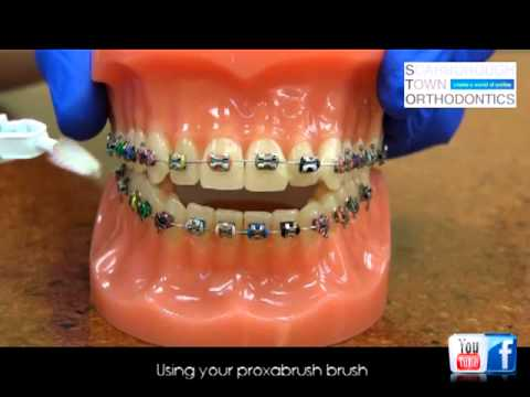 Oral Hygiene Instructions while in braces
