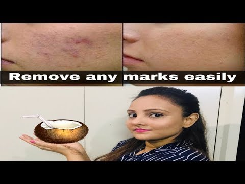 remove any types of marks/remove chickenpox marks at home easily