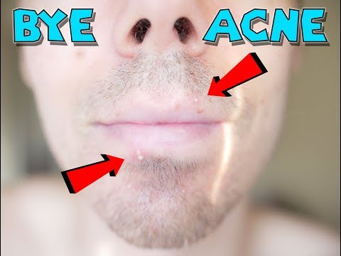 How To Clear Acne For Good With Diet! Why We Break Out And What Foods Cause Acne