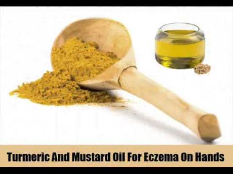 Six Natural Cures For Eczema On Hands