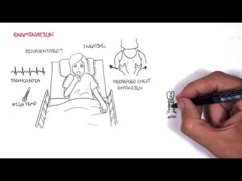 Community Acquired Pneumonia (DETAILED) Overview