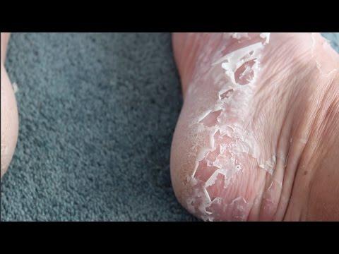 Foot Peel Kit Treatment Review