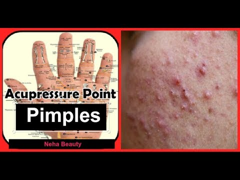 Acupressure points for pimples | Get clear,glowing,spotless skin in 4 weeks | neha beauty