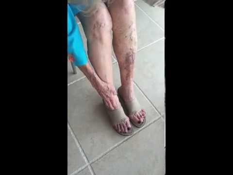 Smart Cover Cosmetics Leg Cover Demonstration