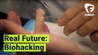 Real Future: I Got a Magnet Implanted in My Finger, For Science (Episode 14)