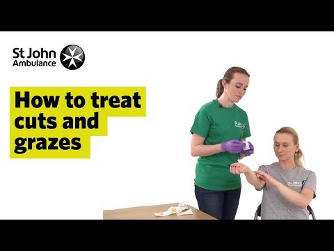 How to Treat Cuts and Grazes - First Aid Training - St John Ambulance