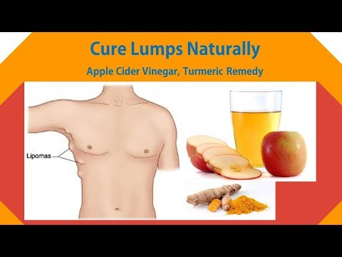 Simple Tips to Cure Lumps Naturally | Apple Cider Vinegar, Turmeric Remedy