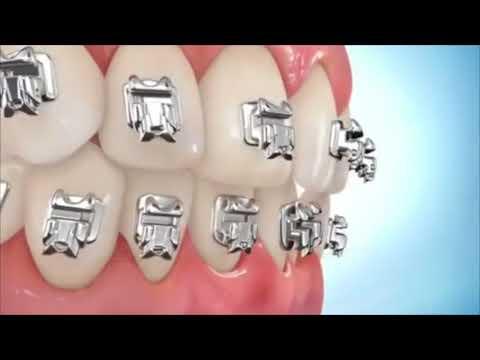 How Dental Braces work during Orthodontic Treatment?