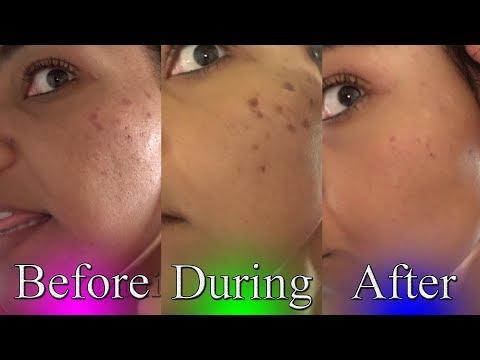 Fade Dark Spots   toothpaste chemical peel