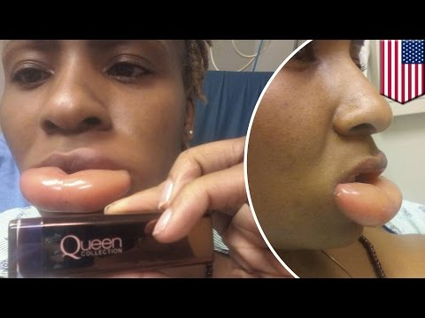 Allergy to makeup: woman rushed to ER with swollen lip after using CoverGirl lipstick - TomoNews