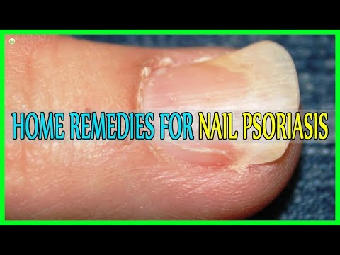 Best Home Remedies For Nail Psoriasis!