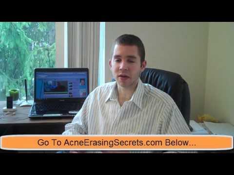 Holistic Acne Treatments   Part 2: Stress & Emotions