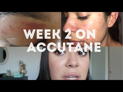 Accutane Week 2 | Waxed My Skin Off & More Symptoms