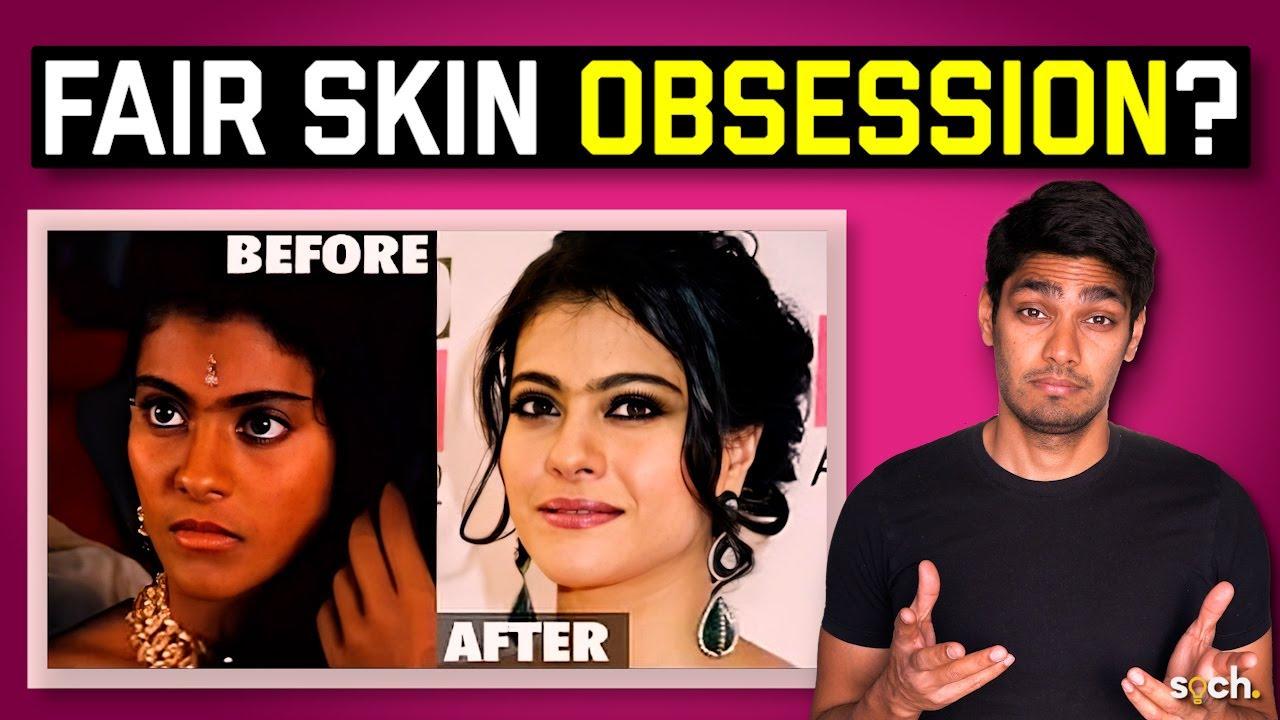 Gora gora rang: Why do Indians love fair skin so much?
