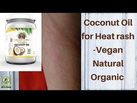 Coconut Oil for Heat Rash - Remedy - Vegan DIY Natural & Organic