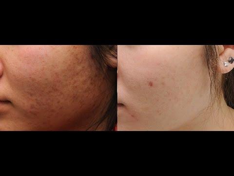 चेहरे के कालेपन को दूर करने का और सफेद चेहरा पानेे का घरेलु नुस्खा | Home Remedy to get fair skin.