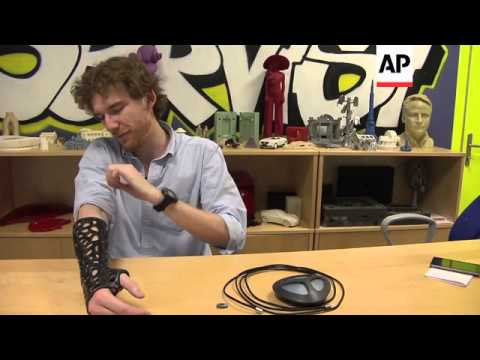3D printed cast changing lives of cerebral palsy sufferers