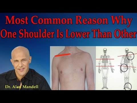 Most Common Reason Why One Shoulder Is Lower Than The Other - Dr Mandell