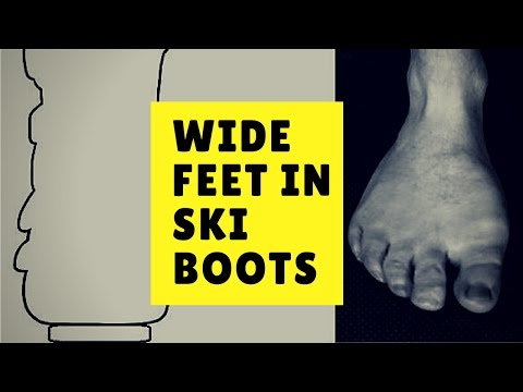 Wide Feet in Ski Boots - Bootorials Ep. 33