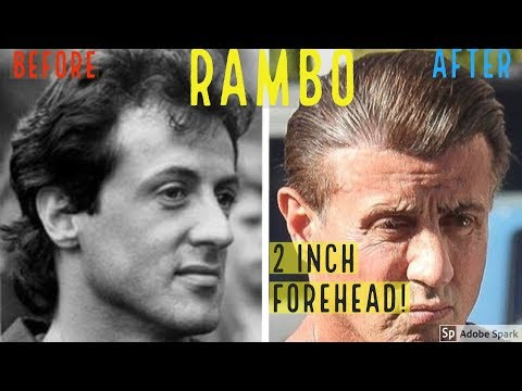 OMG SYLVESTER STALLONE'S HAIR TRANSPLANT? HERE'S PROOF!
