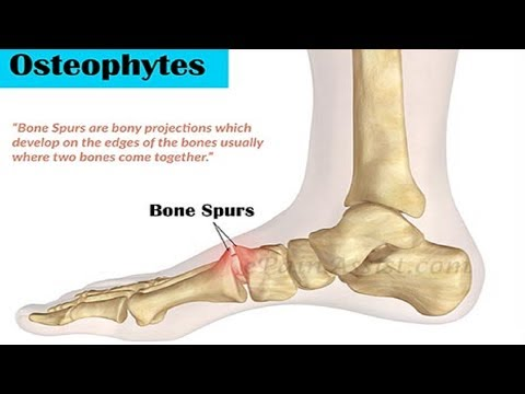 5 Home Remedies for Bone Spurs Treatment.