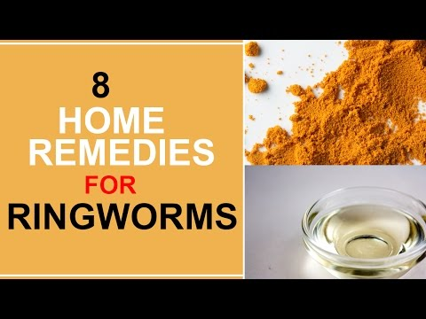 8 Home Remedies For Ringworms