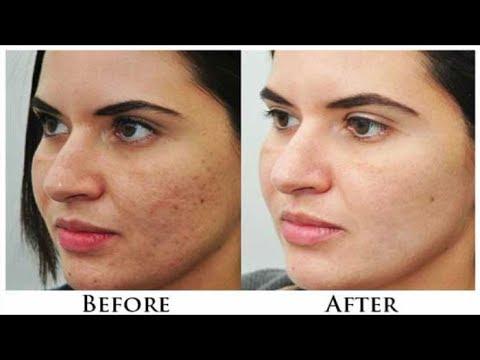 चेहरे से काले दाग, धब्बे व् मुहासों के निशान हटाने का घरेलू उपाय / How to get clear & spotless skin