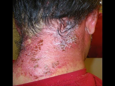 Effective Home Remedies to Treat Hair Dye Allergies